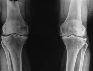 joint mobilizations after total knee arthroplasty picture 11