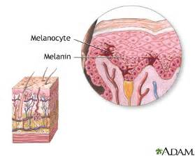 melanosis of the skin picture 2