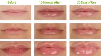 vitamins for plump lips picture 3