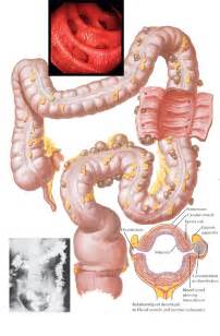 herpes and diverticulitis picture 1