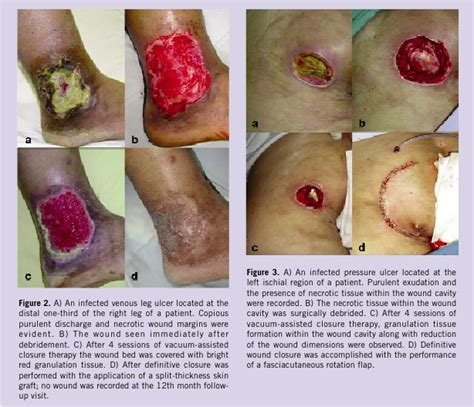 pseudomonas bacterial infection of legs picture 11