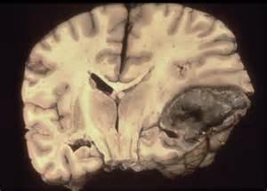 bacterial meningitis left side brain hole picture 10