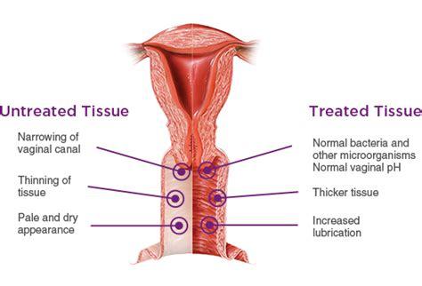 what irritates vagina to increase libido picture 5