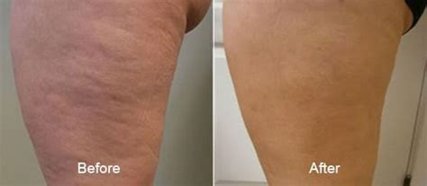 cellulite treatment new jersey picture 5
