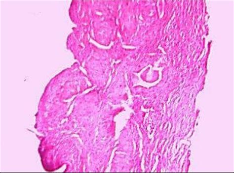 bladder carcinoma cell gall squamous picture 10