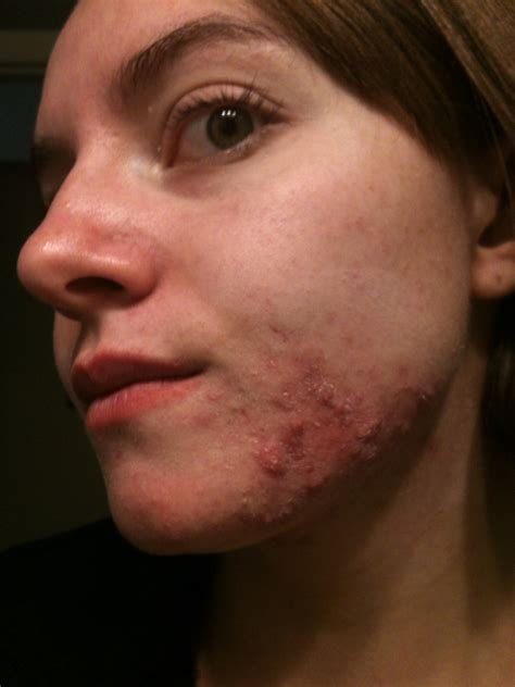 5 days late and bad acne picture 11