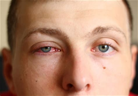 bacterial eye infections picture 9