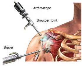 infrasound back joint pain relief procedure picture 6