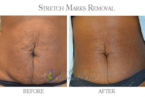 removal of stretch marks picture 6