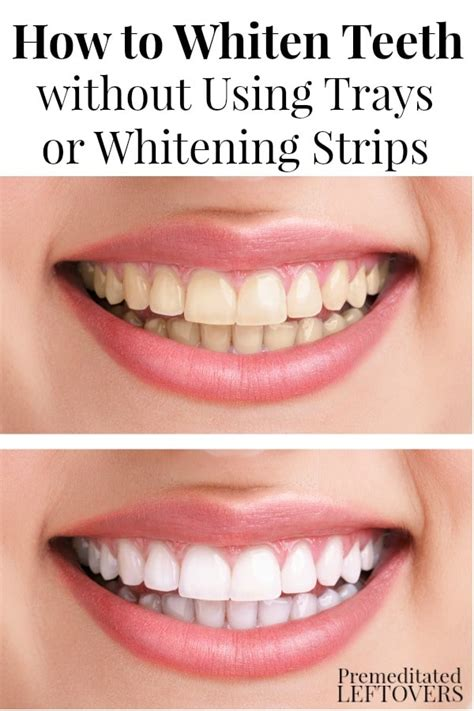 whiten teeth without perioxide or bleach picture 13