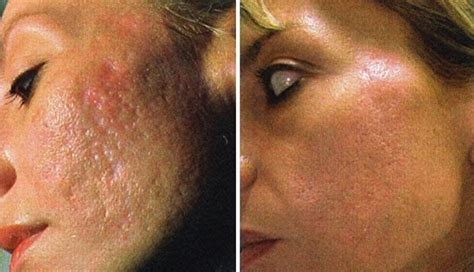 solution for acne scars picture 14