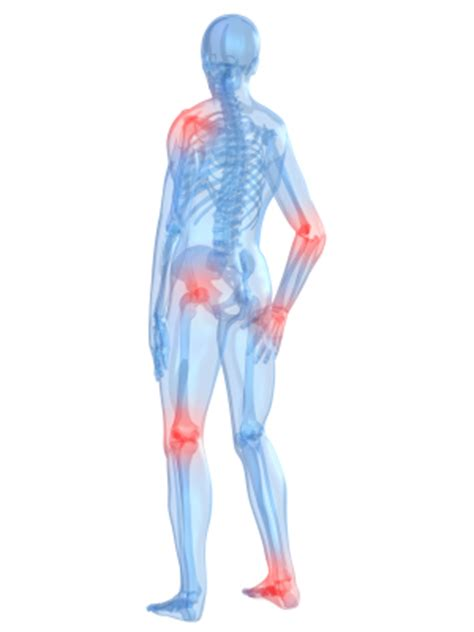 muscle ache joint pain picture 14