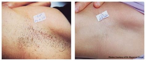 hair removal an hemorrhoids picture 9