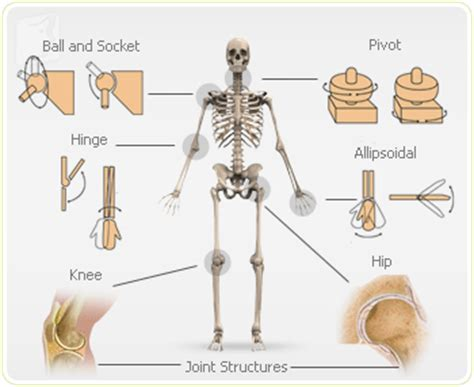 arthritis in every joint of the body picture 6