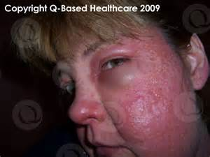 does extenze cause acne picture 10