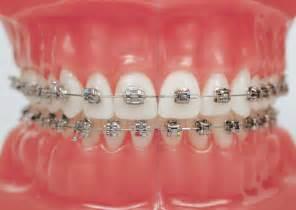 braces picture 6