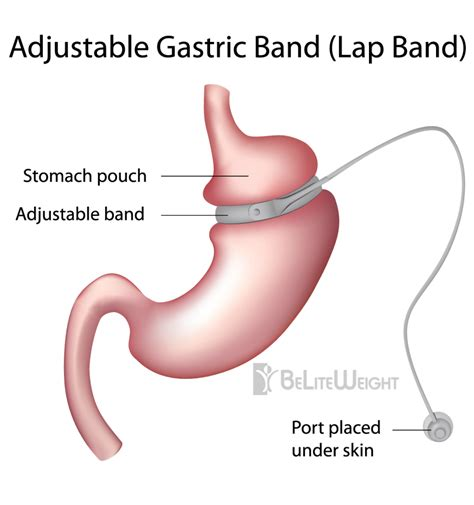 expected weight loss with the gastric band picture 2