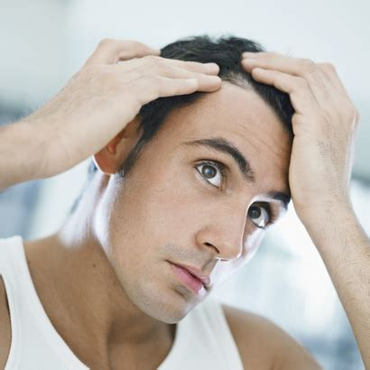 alopecia hair loss every where picture 5