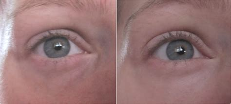 tinted eye brightener picture 10