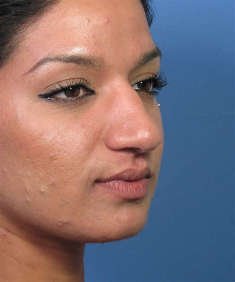 skin cancer example picture 3