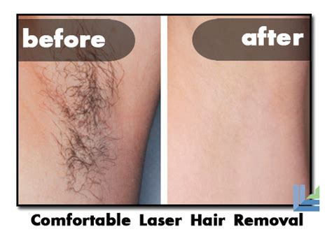 surgery and hair removal picture 5