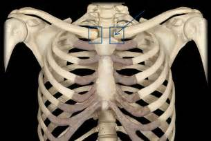 ac joint arthritis picture 15