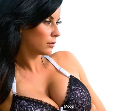 breast augmentation long island picture 1