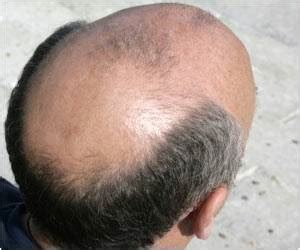 new breakthrough medical world 2014 hairloss , balding picture 2