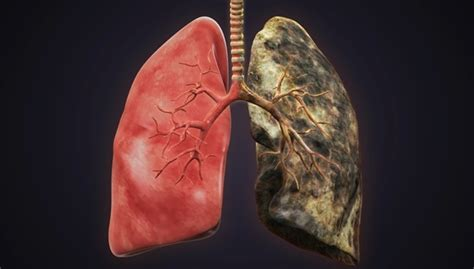 smoke in the lungs picture 5