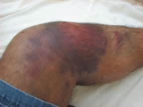 abnormal red blotches on skin picture 5