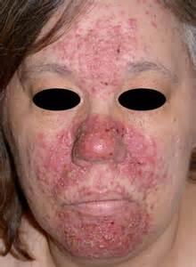 pro acne medicine picture 10