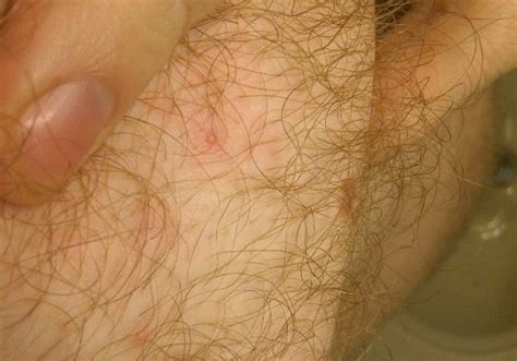 +infected hair follicle picture 2