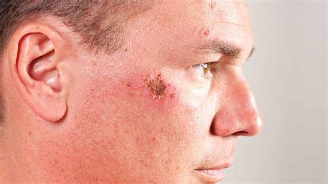 heal acne marks picture 1