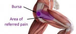 joint and muscle pain stiffness picture 3