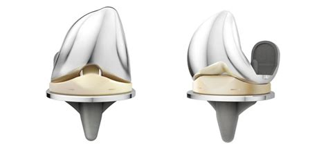 knee joints that picture 9