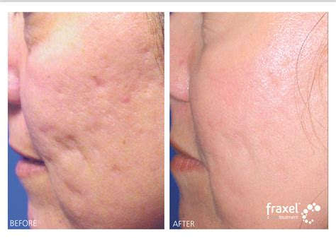 fraxel for acne scars picture 1