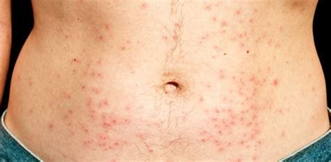rashes hives picture 10
