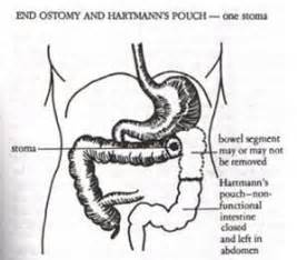 infection in the intestines or colon picture 18