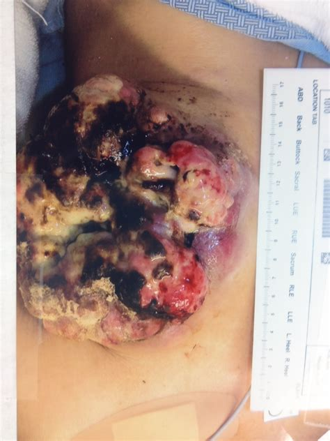 colon cancer surgery prognosis picture 5