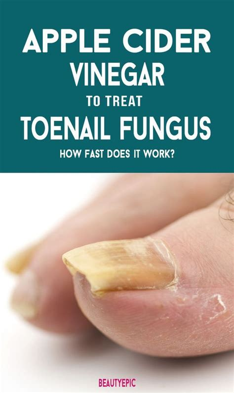 white or cider vinegar for toenail fungus?? picture 5