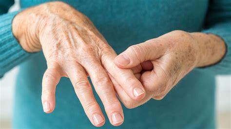 arthritis picture 4