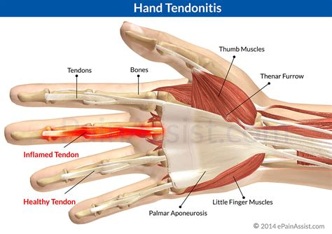 tendonitis relief picture 3