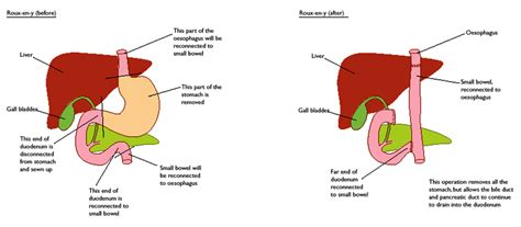 diet for people with no small intestine picture 11
