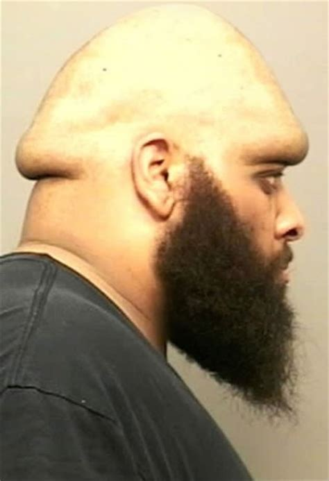 biggest mushroom penis head picture 2