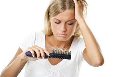 alopecia hair loss picture 13