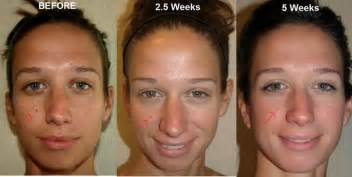 anti aging solution to melasma skin picture 13