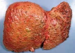 sclerosis of the liver picture 3
