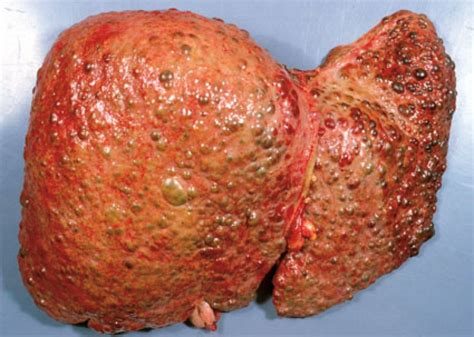 cirrhosis of the liver pictures picture 3
