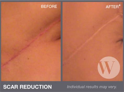 acne scar removal surgery picture 2
