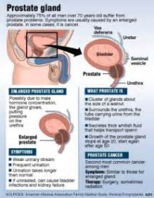 miracle cure for prostate infection picture 7